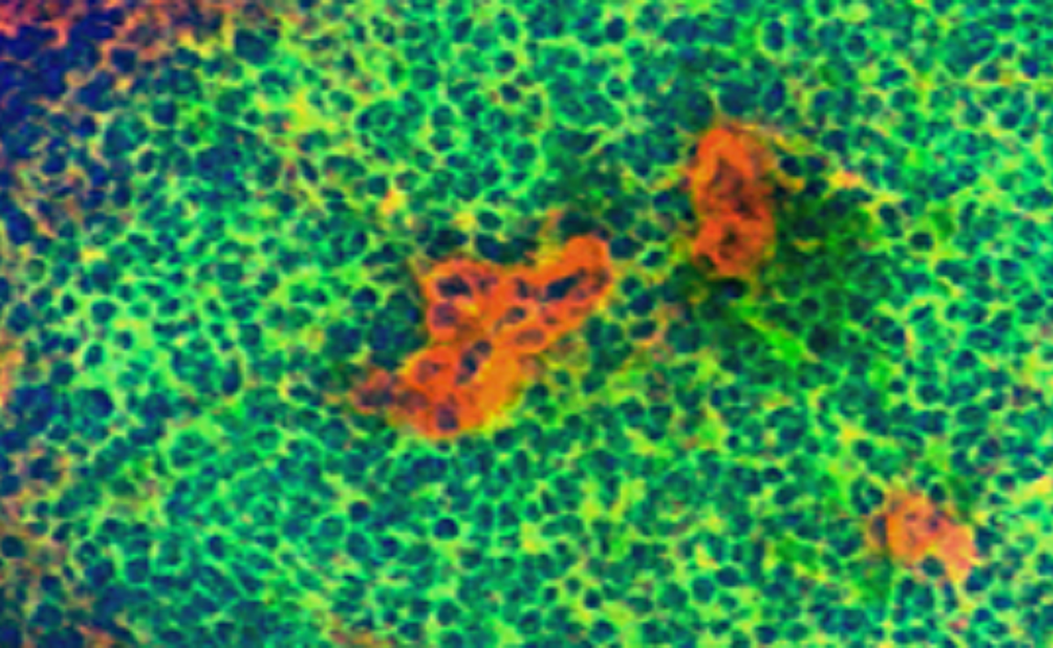 Postdoctoral Position Open - Molecular Oncology
